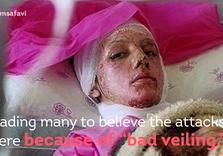 Iran Pressures Media over coverage of Acid Attacks on Women
