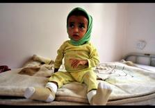 War-Torn Yemen faces Disease Outbreaks w/out Humanitarian Corridor