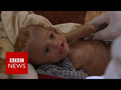 A Yemeni Child Dies Every 10 Minutes as Saudi Attacks Continue