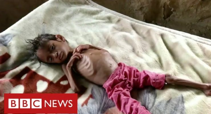 Millions of Yemeni Children on Brink of Starvation amid Saudi War, Covid-19 Aid Cutbacks: UNICEF