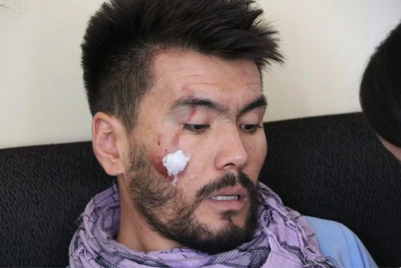 Afghanistan: Taliban Severely Beat Journalists:  New Restrictions Indicate Crackdown on Free Speech (HRW)